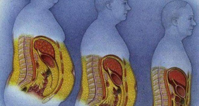 a zsírvesztés nehéz súlycsökkentő táborok iowában